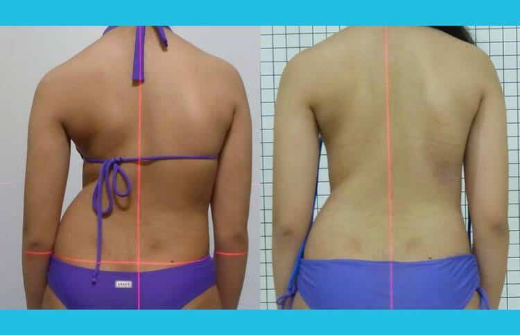 Tratamento de escoliose sem cirurgia