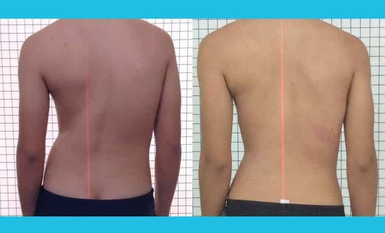 Tratamento de escoliose sem cirurgia 2