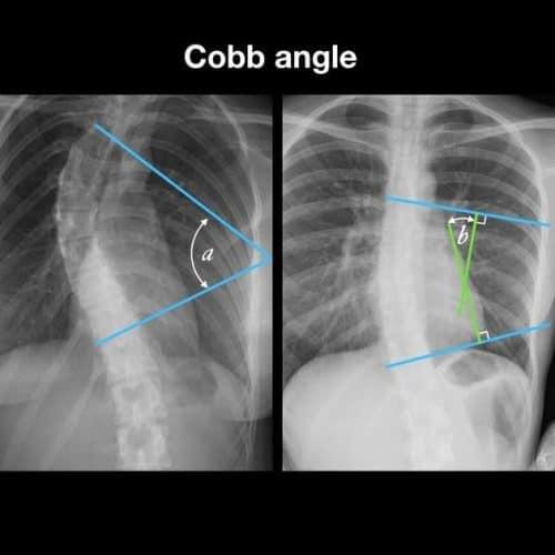 radiografia exemplificando Ângulo de cobb -