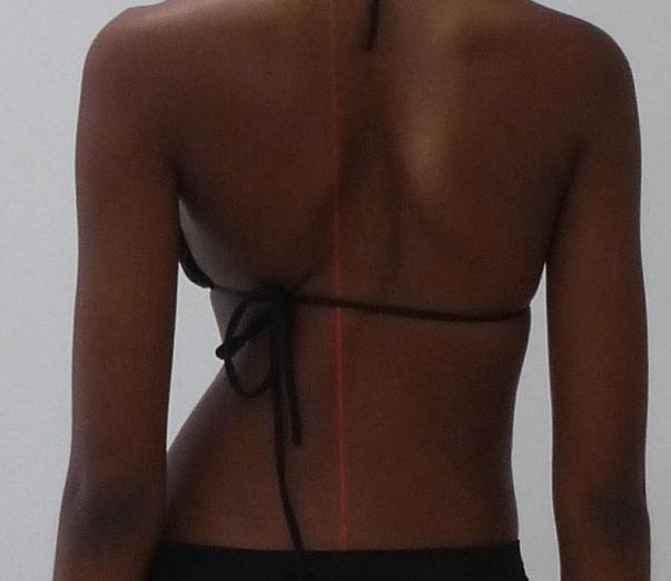 O que é a escoliose menina costas com escoliose